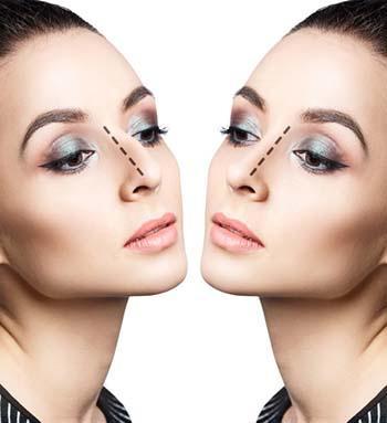 chirurgia estetica del naso prima e dopo