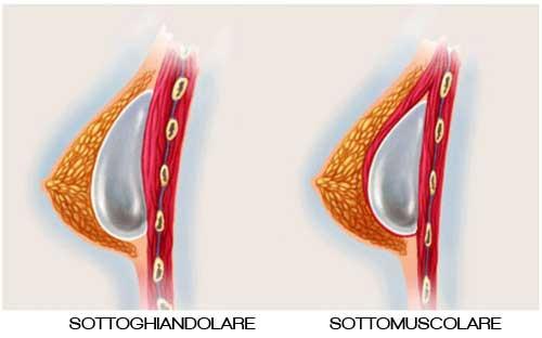 mastoplastica additiva sottomuscolare vs mastoplastica additiva sottoghiandolare
